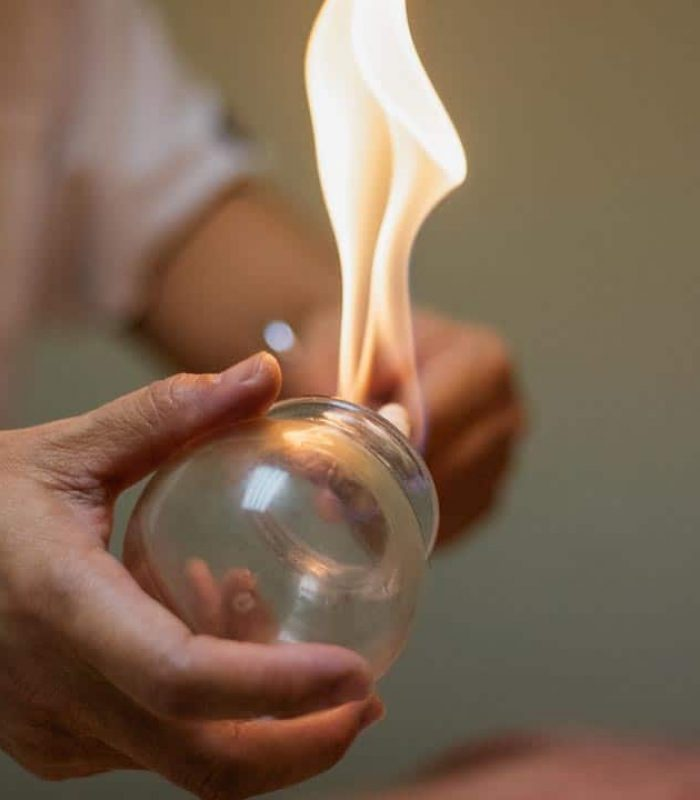 Woman preparing glass cup with flame for cupping therapy, a treatment used in Traditional Chinese Medicine (TCM) for pain relief and other health benefits.